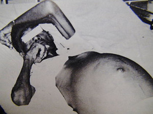 420pxedema_abdomen_by_schistosomias